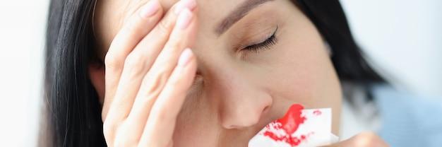 Kobieta z bólem głowy trzymająca zakrwawioną serwetkę w pobliżu koncepcji leczenia krwawienia z nosa