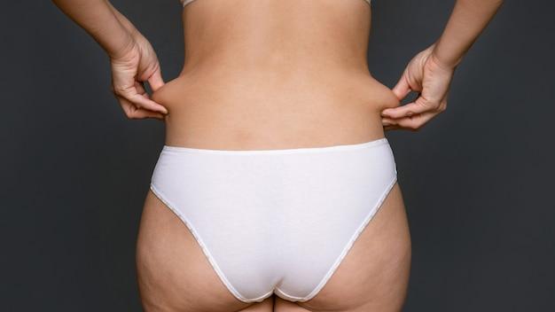 Kobieta z nadwagą i otyłością.