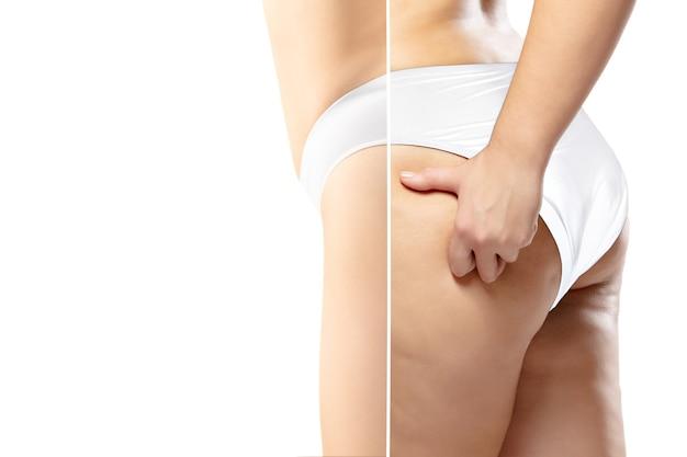 Kobieta z nadwagą z cellulitem na nogach i pośladkach w białej bieliźnie w porównaniu z dopasowaną i szczupłą sylwetką na białym tle. skóra pomarańczowa, liposukcja, opieka zdrowotna, uroda, sport, chirurgia.