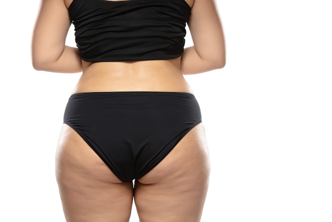 Kobieta z nadwagą z tłustymi cellulitowymi nogami i pośladkami, otyłość kobiecego ciała w czarnej bieliźnie