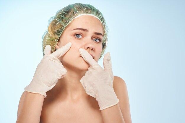 Kobieta z odkrytymi ramionami w rękawiczkach ściska trądzik na swojej twarzy pielęgnacyjnej