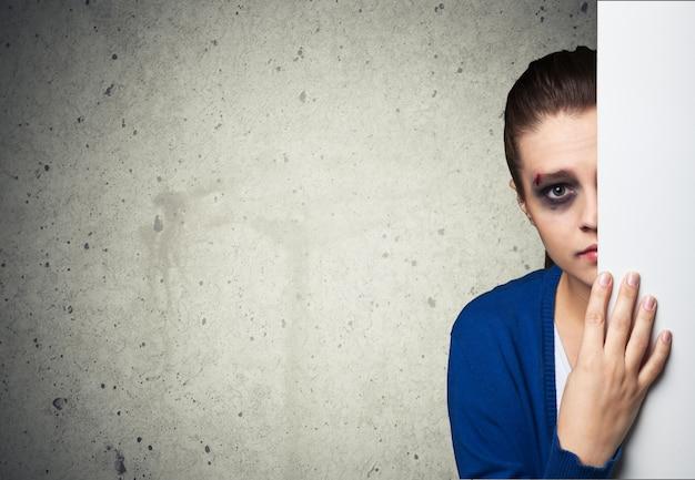 Kobieta z siniakami ofiara przemocy domowej lub wypadku chowająca się za ścianą