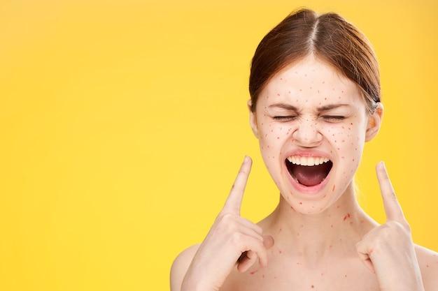 Kobieta z wysypką i zapaleniem twarzy