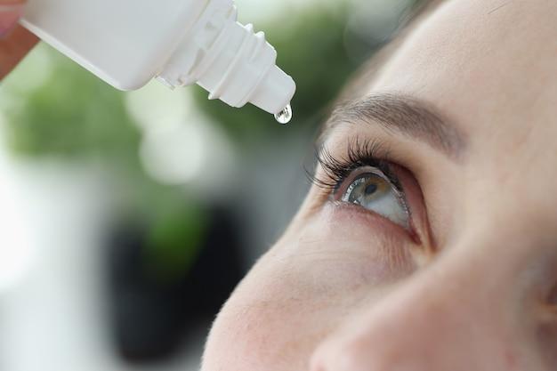 Kobieta zacieka jej do oczu kroplami antybakteryjnymi, leczenie zbliżenia wirusowego zapalenia spojówek