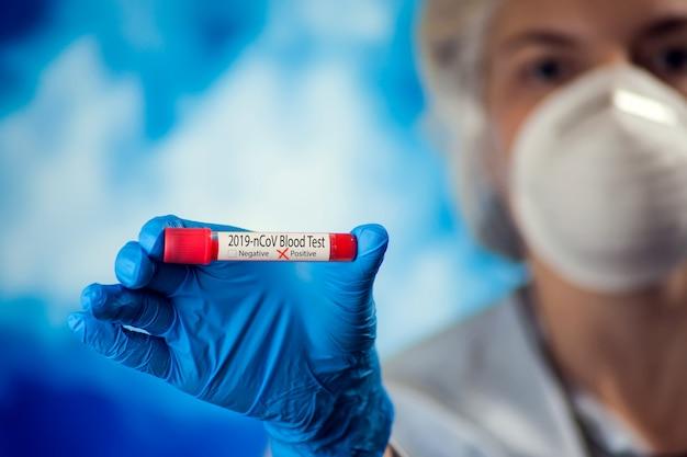 Kobiety lekarka trzyma medyczną tubkę z krwią w medycznej masce i błękitnych rękawiczkach. koncepcja koronawirusa, epidemii i opieki zdrowotnej