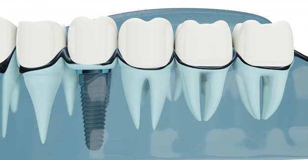 Komponent implantów dentystycznych z bliska. kolor niebieski przezroczysty. ilustracje 3d