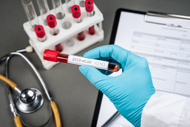 Koncepcja badania krwi koronawirusa. ręka lekarza trzymając probówkę z krwią do analizy laboratoryjnej 2019-ncov. nowy koronawirus pochodzący z wuhan w chinach