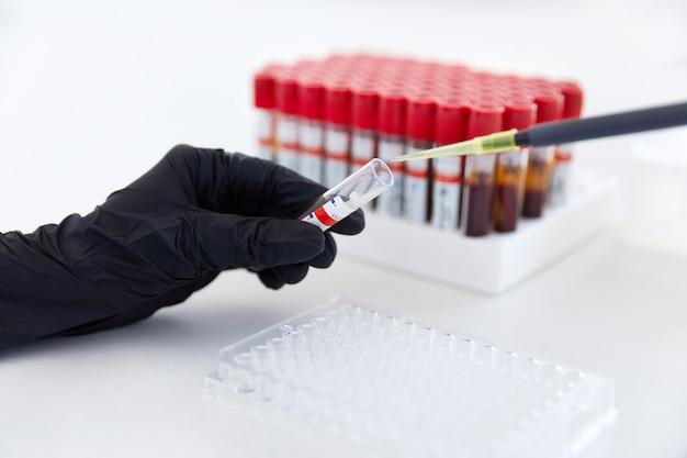 Koncepcja badania krwi ręce technika laboratoryjnego z probówką z próbką krwi i stojakiem z innymi próbkami
