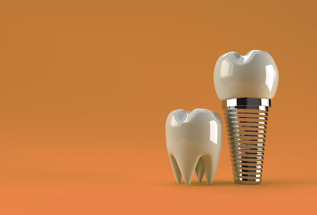 Koncepcja chirurgii implantów dentystycznych renderowania 3d.