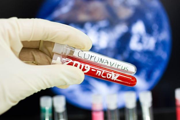 Koncepcja epidemii koronawirusa na całej planecie wirus rozprzestrzenia się na całym świecie