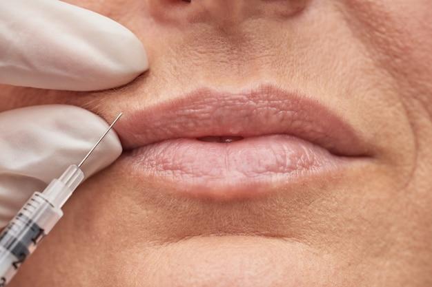 Koncepcja piękna z bliska ujęcie kobiety wykonującej procedurę powiększania ust przez kosmetologa
