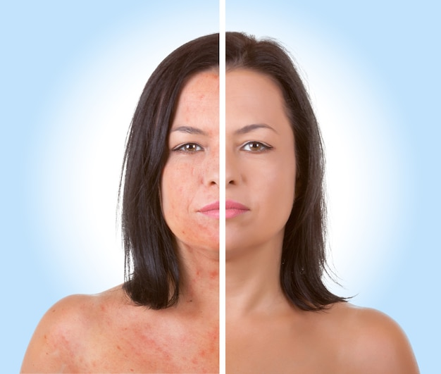 Koncepcja pielęgnacji skóry. młoda modelka z problemem skórnym przed i po zabiegu leczenia trądziku na niebieskim tle