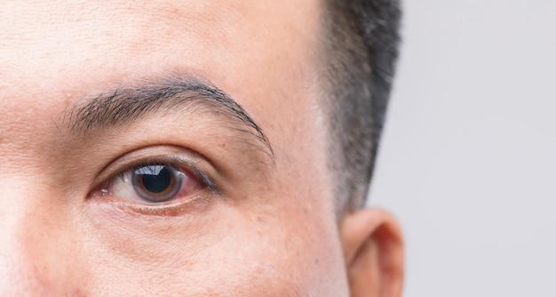Koncepcja podrażnienia oczu: makro czerwone oko człowieka, oko z zapaleniem spojówek lub po zakurzeniu