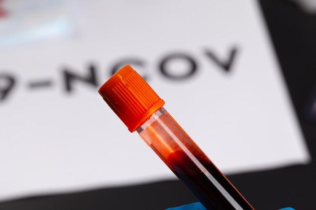 Koncepcja wybuchu koronawirusa. diagnoza koronawirusa, badania laboratoryjne