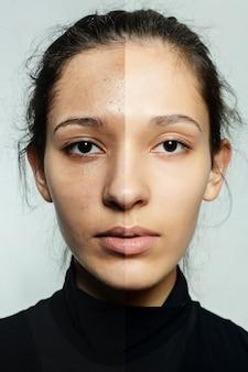 Koncepcja zdrowia, ludzi, młodości i urody - przed i po operacji kosmetycznej. młoda ładna kobieta portret. przed i po zabiegu kosmetycznym lub plastycznym terapia anti-age, leczenie
