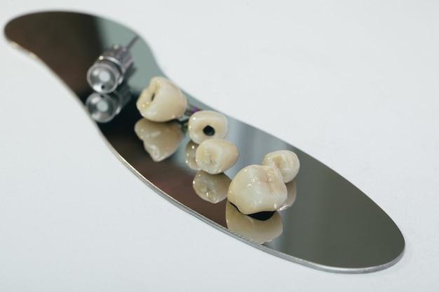 Korona dentystyczna z cyrkonu - sztuczny ząb do żucia ze śrubokrętem ortopedycznym. korona cyrkonowa i łącznik hybrydowy z cyrkonu.