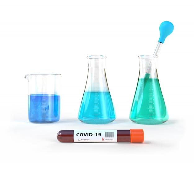 Koronawirus, covid-19, badanie krwi w szpitalnym laboratorium