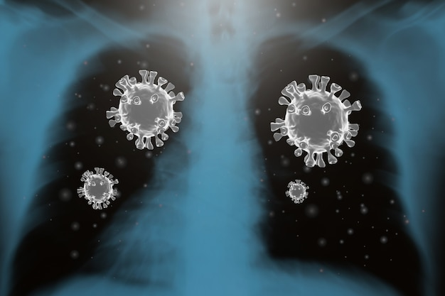 Koronawirusy grypy covid-19 film rentgenowski stosowany w medycynie renderowania 3d.