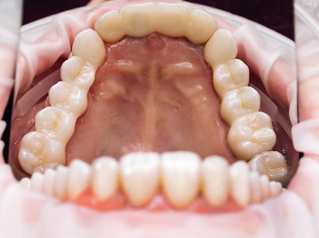 Korony ceramiczne zębów na modelu.