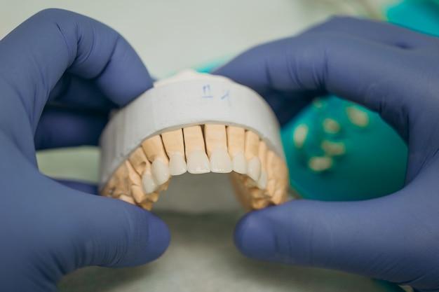Korony dentystyczne w modelu. ceramiczne licówki przednie.