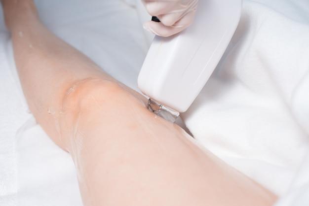 Kosmetolog wykonuje depilację laserową kobiecej nogi. zdjęcie procesu.