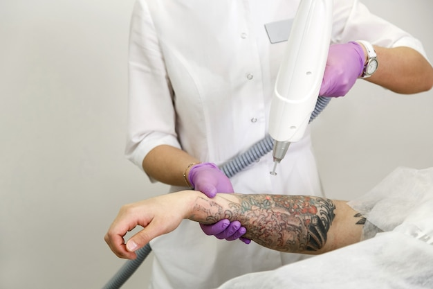 Kosmetolog z pacjentem i profesjonalnym laserem do usuwania tatuaży z ręki w salonie