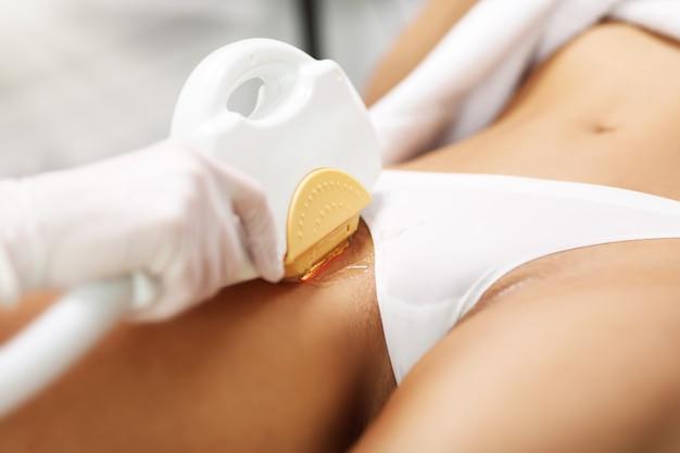 Kosmetyczka wykonująca zabieg depilacji laserem kobiecie na bikini