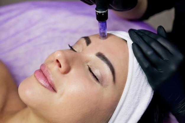 Kosmetyczka wykonuje zastrzyki w czoło mezoterapii metodą mikroigłową.