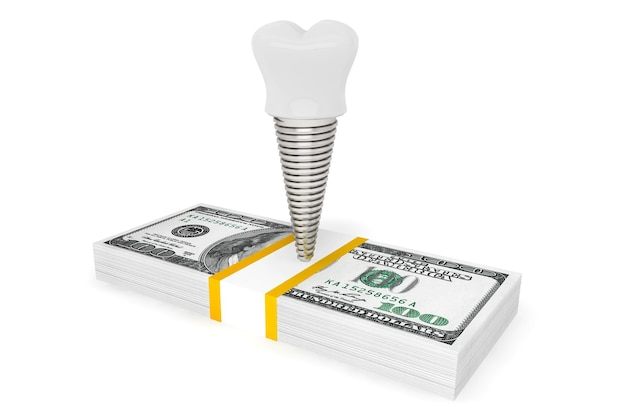 Koszt koncepcji stomatologicznej. implant zęba z pieniędzmi na białym tle