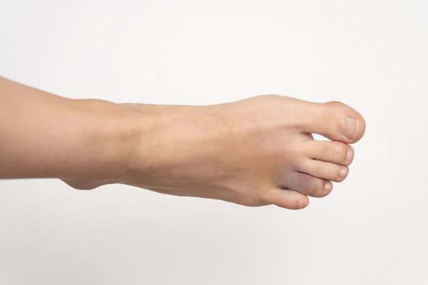Krwiak po urazie palca pierścieniowego lewej stopy.