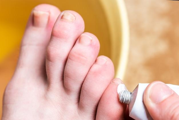 Kukurydza lub clavus na kobiecej stopie. nakładanie maści na pęcherze.