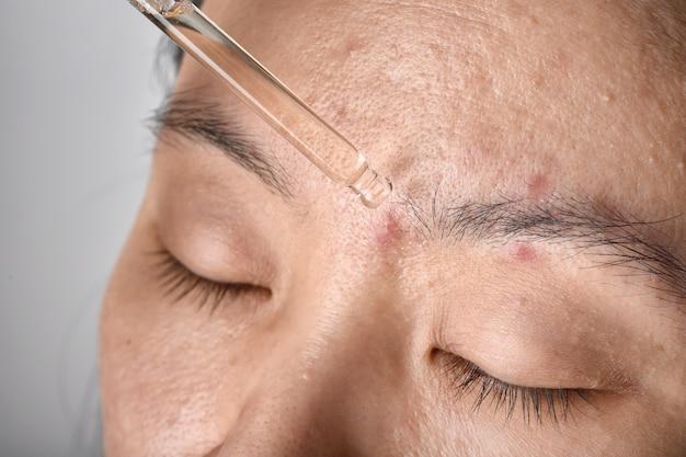 Leczenie skóry trądzikowej lekarz dermatolog upuszcza serum, aby wyleczyć problem skóry z pryszczami.