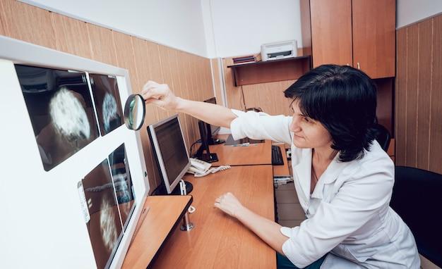 Lekarz bada test mammograficzny. sprzęt medyczny w szpitalu