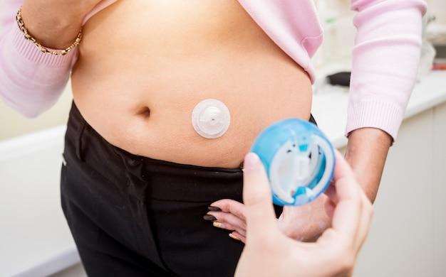 Lekarz instaluje cewnik insulinowy pacjenta w celu prostego wstrzyknięcia insuliny. koncepcja cukrzycy