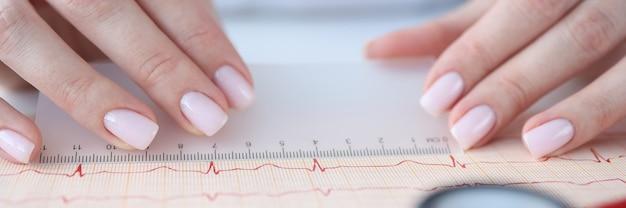 Lekarz kardiolog badając elektrokardiogram z linijką zbliżenie. koncepcja diagnostyki funkcjonalnej