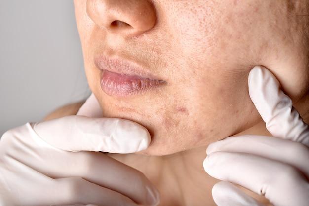 Lekarz lub dermatolog bada twarz pacjenta. problemy skórne i blizny potrądzikowe.