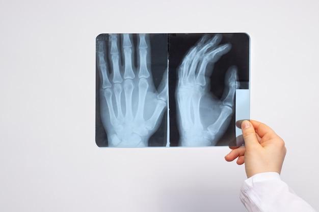 Lekarz lub radiolog posiada zdjęcie rentgenowskie pacjenta z urazem ręki.
