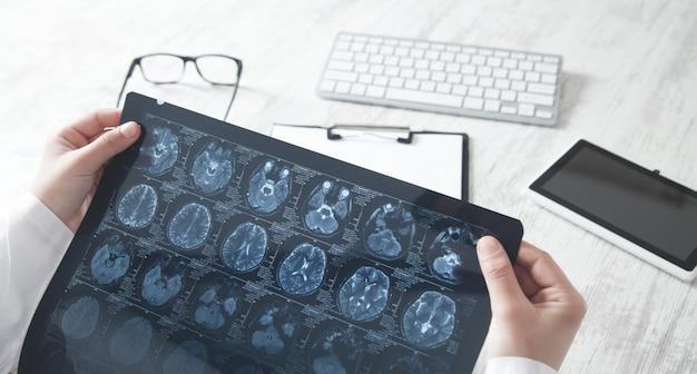 Lekarz patrząc na zdjęcie rentgenowskie głowy.