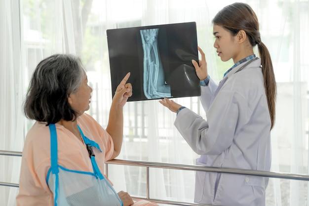 Lekarz poinformuj o wynikach badania rentgenowskiego filmu rentgenowskiego, aby zachęcić starszą kobietę do złamania ramienia w szpitalu