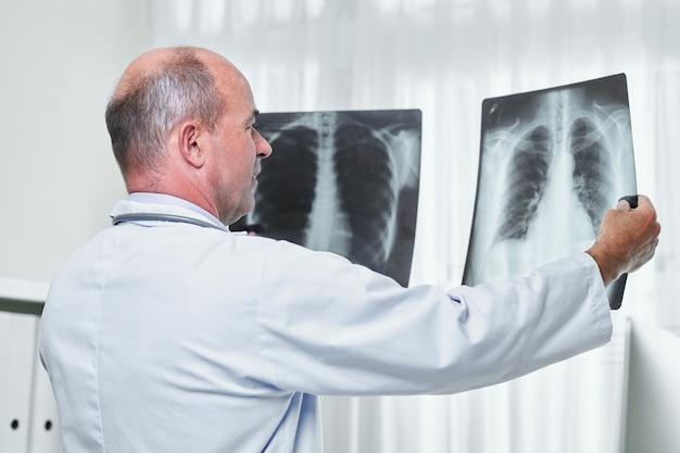 Lekarz porównujący zdjęcia rentgenowskie