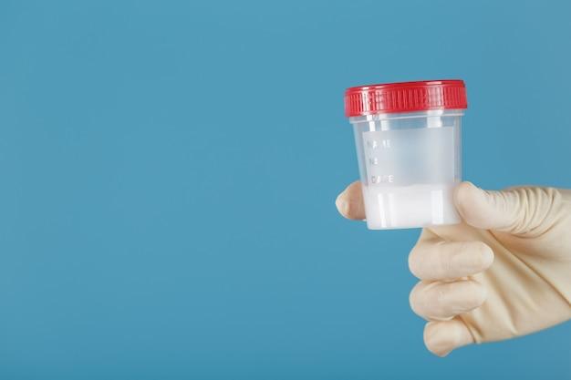 Lekarz trzyma w dłoni plastikowy słoik z nasieniem do analizy