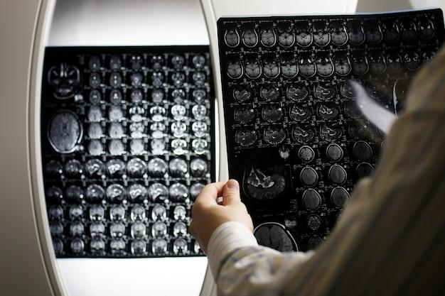Lekarz trzymający obraz przepływu pracy mri mózgu w szpitalu diagnostycznym