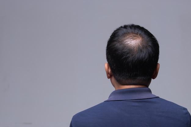 Lekarz wstrzykuje serum witaminowe wypadanie włosów