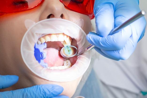Lekarz wywiercił ząb borową maszyną usuwającą próchnicę