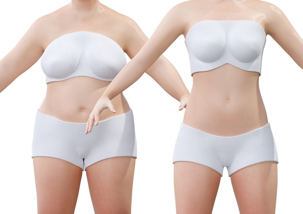 Liposukcja przed i po u młodej kobiety. chirurgia plastyczna w celu usunięcia zlokalizowanego nadmiaru tłuszczu. renderowanie 3d