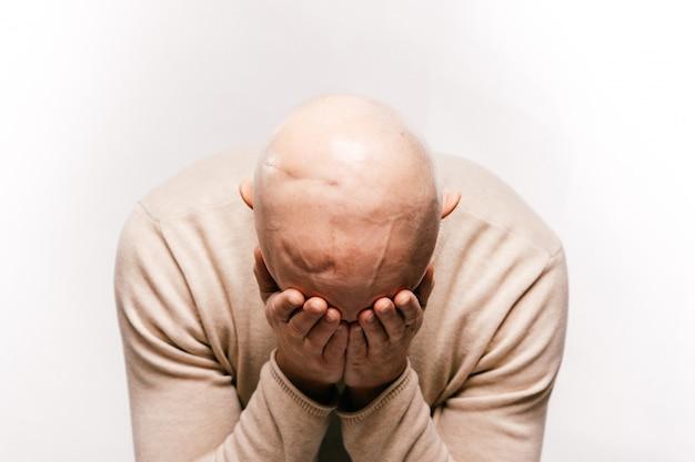 Łysy mężczyzna stres psychiczny walczy o nowotwór mózgu artera życia. bolesne męskie emocje po operacji neurochirurgii raka. pacjent, który przeżył onkologię. chemioterapia i napromienianie głowy