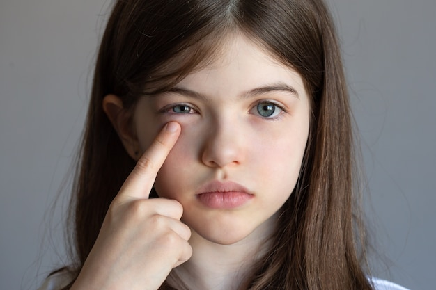 Mała dziewczynka ma ból oka, uraz oka, zapalenie spojówek, alergie, dziecko ma opuchnięte oczy