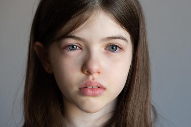 Mała dziewczynka z czerwonymi, wodnistymi oczami, wirusem, zimnymi, opuchniętymi oczami, alergią