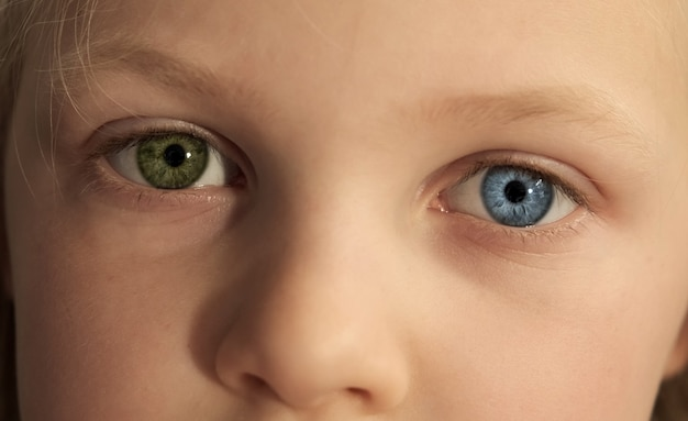 Małe dziecięce oczy w różnych kolorach. dziecko z całkowitą heterochromią. niebiesko-zielone oczy.