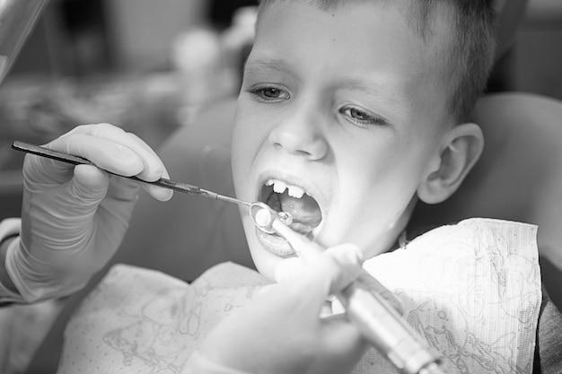 Mały chłopiec na przyjęciu u dentysty w klinice dentystycznej. stomatologia dziecięca, stomatologia dziecięca. fotografia czarno-biała w stylu retro. zdrowie i higiena jamy ustnej